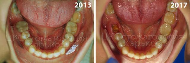 плохие зубы с ретроспективным взглядом через 4 года