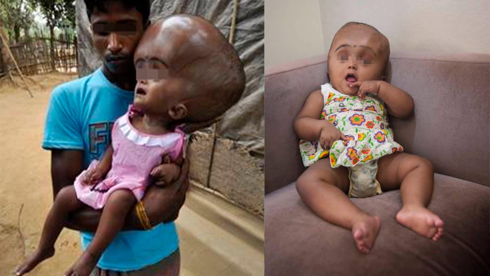 79ea7ab445a13 Roona nasceu com hidrocefalia, uma condição em que o líquido  cefalorraquidiano se acumula no cérebro, causando inchaço e um acúmulo de  pressão.