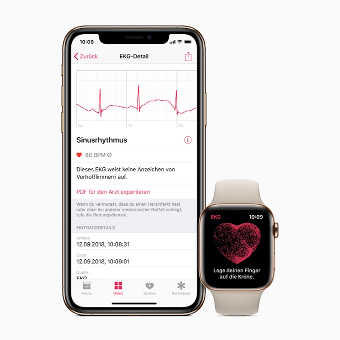 Apple Watch Series 4 - ECG app and irregular rhythm notification watch available across Europe and Hong Kong