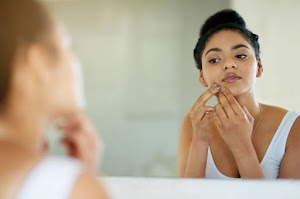 8 Simple Steps to Get Rid of Underground Pimple