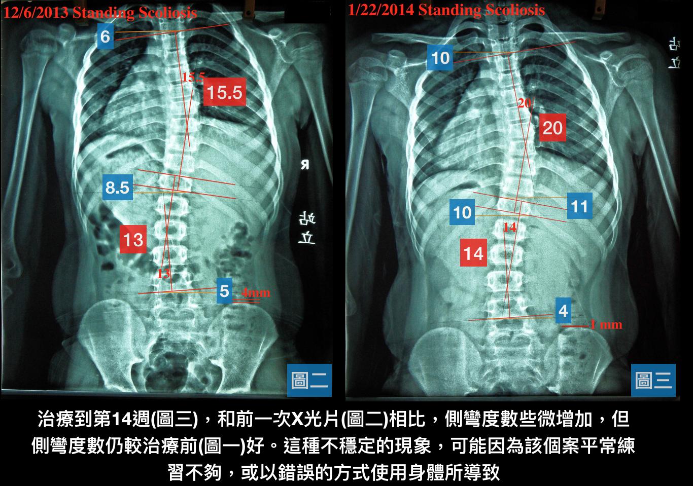 脊椎側彎矯正案例8 - 10歲治療七週33~15.5度+後續追蹤(9個月進步19.5度) - 閻曉華脊骨神經醫學網