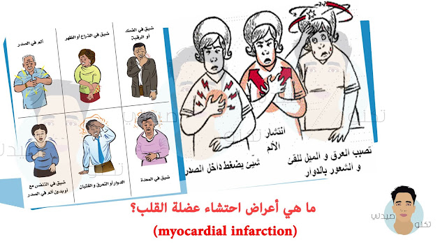 ما هي أعراض احتشاء عضلة القلب (myocardial infarction)؟