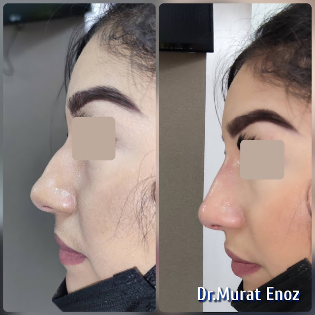 The 5 Minute Nose Job in Istanbul,Nose filler injection Turkey,