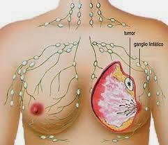 Pengobatan Tumor Payudara Tanpa Operasi