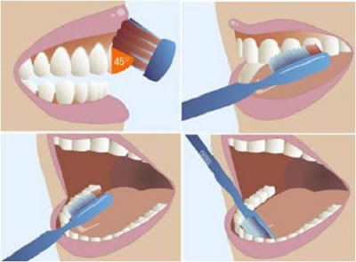 mòn chân răng có trám được không -5