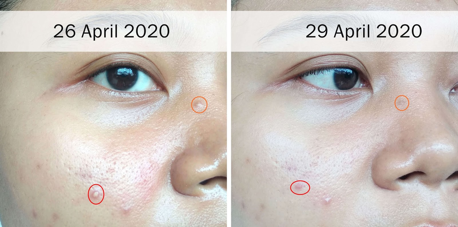 astop-clear-serum-review