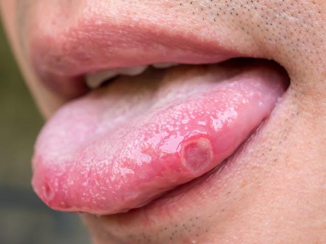 Les causes des cloques qui se produisent sur la langue