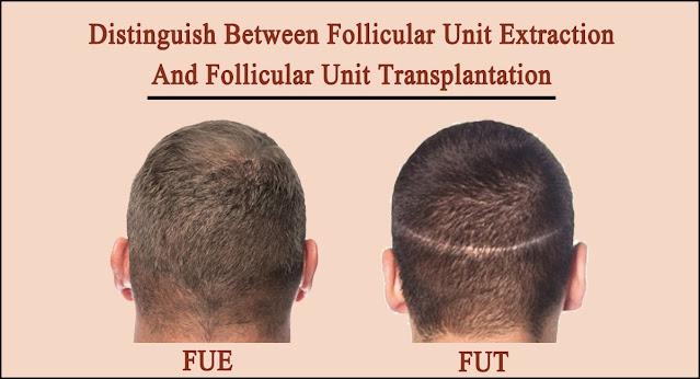 Distinguish Between Follicular Unit Extraction and Follicular Unit Transplantation