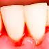 La enfermedad periodontal puede aumentar el riesgo de cáncer en mujeres posmenopáusicas