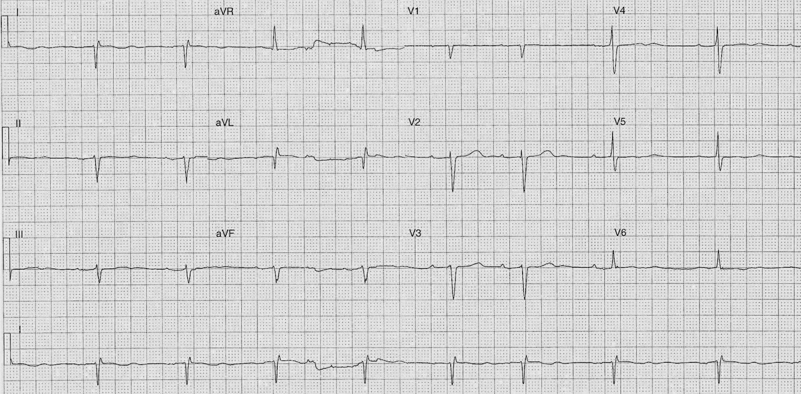 Ecg Of The Week Ecg Of The Week