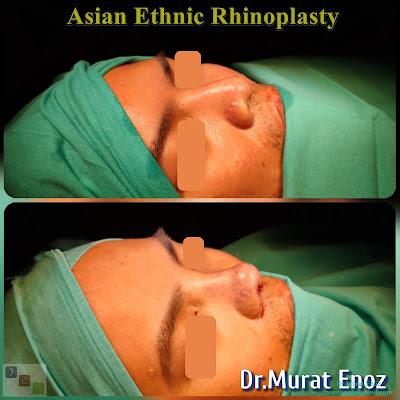 Asian Ethnic Nose Job in Istanbul - Asian Rhinoplasty