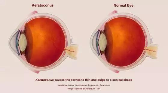 Keratoconus eye vs Normal eye , Keratoconus eye , Keratoconus of the eye