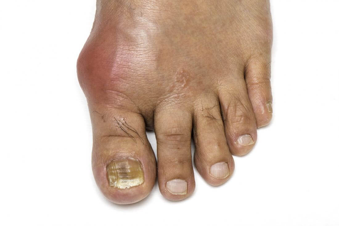 gout-on-foot