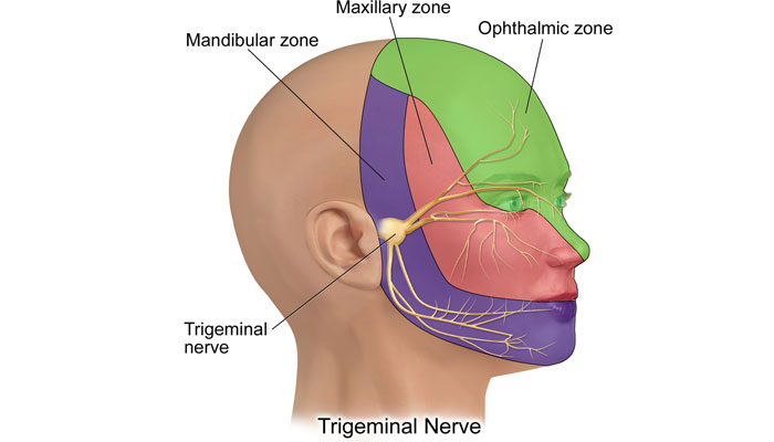 Inflamacion del nervio trigemino