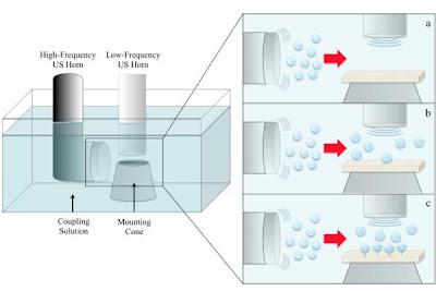 Gelombang Ultrasonik Memudahkan Pemberian Obat Melalui Kulit Gelombang Ultrasonik Memudahkan Pemberian Obat Melalui Kulit