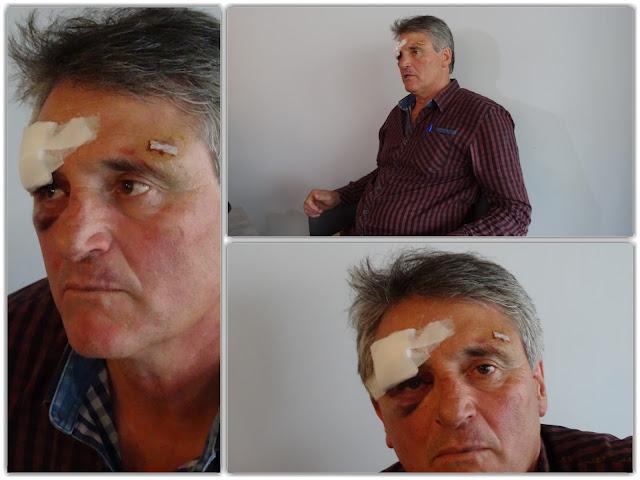 Ξυλοδαρμό από αστυνομικούς καταγγέλλει γνωστός επιχειρηματίας (+ΒΙΝΤΕΟ)