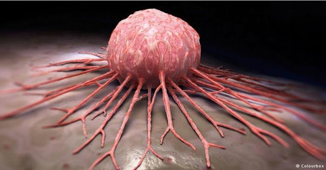 Medical Breakthrough: Any Type Of Cancer Can Be Cured In Just 2-6 Weeks