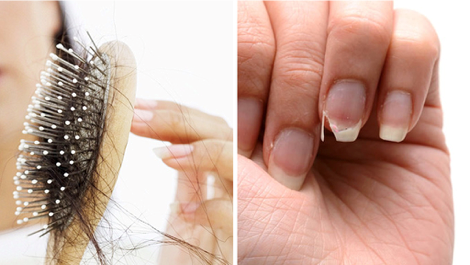 Here's How To Stop Hair Loss And Brittle Nails With My Grandmother's Tip