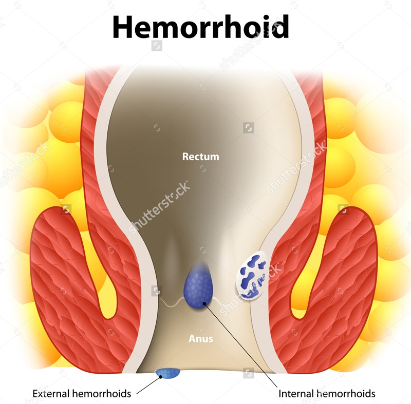 Home Remedies for Piles for Your Hemorrhoids Problem