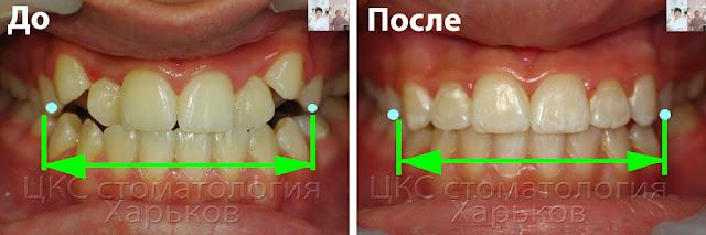 Величина расширения челюстей по фото до и после