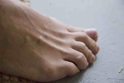 الم في اصبع القدم الصغير