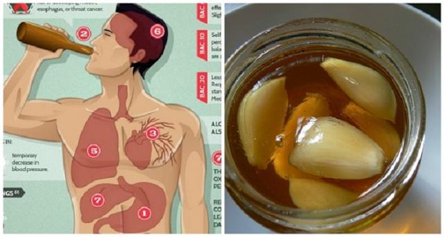 Mengatasi Darah Tinggi, Kolesterol, Jantung Koroner dengan Bawang Putih