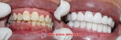 bọc răng sứ có nguy hiểm không -6