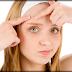 The Very Best Physique Pimples Scar Elimination Treatments