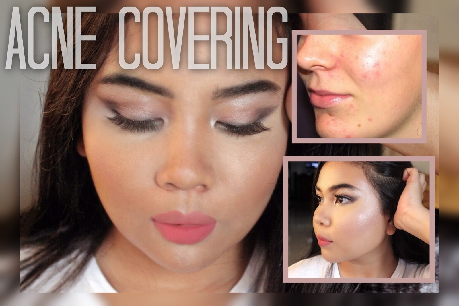HOW TO GET RID OF ACNE , REDNESS AND DARK SPOTS | Kingnaomi