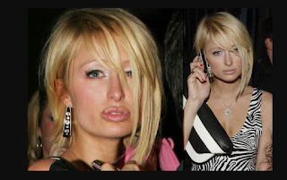 Paris Nicky Hilton Plastic Surgery