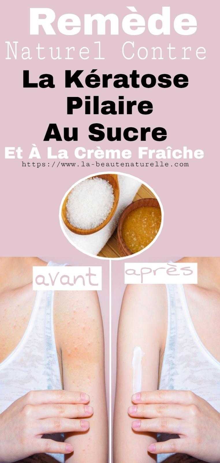 Remède Naturel Contre La Kératose Pilaire Au Sucre Et À La Crème Fraîche
