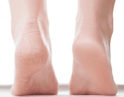 كيف تعالجين تشققات القدمين