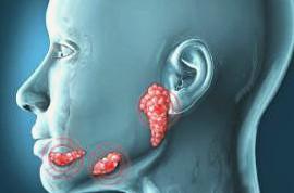 التهاب الغدد اللعابيةSalivary gland infections
