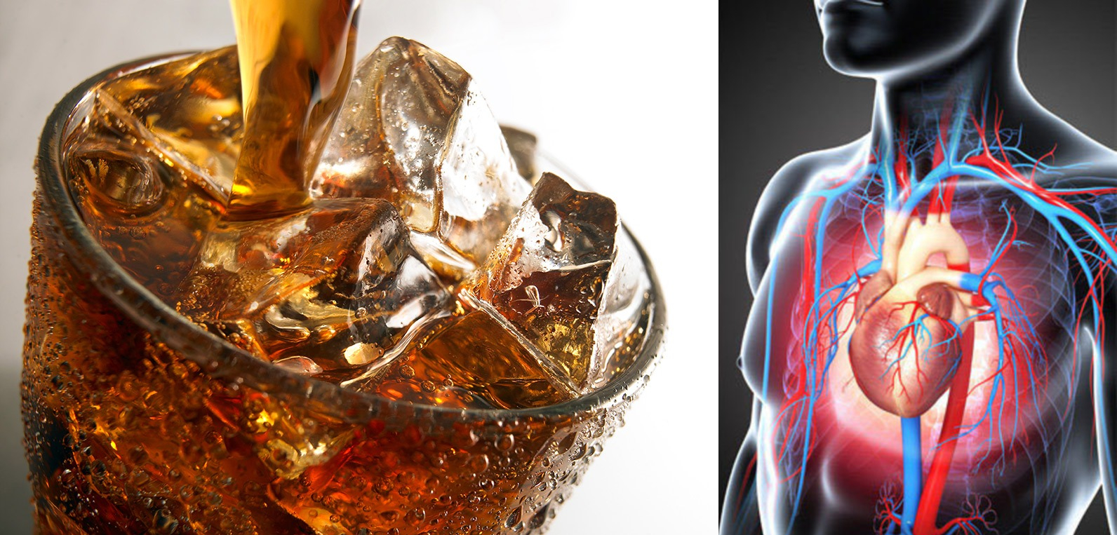 Artificially Sweetened Drinks Are Linked To Higher Stroke Risk