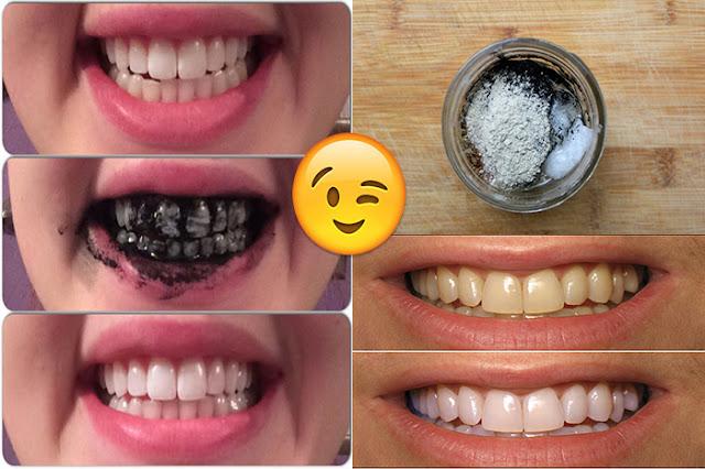 | تبييض الأسنان |... أشياء تقوم بها يوميا تسبب اصفرار الأسنان |ملكة العرب