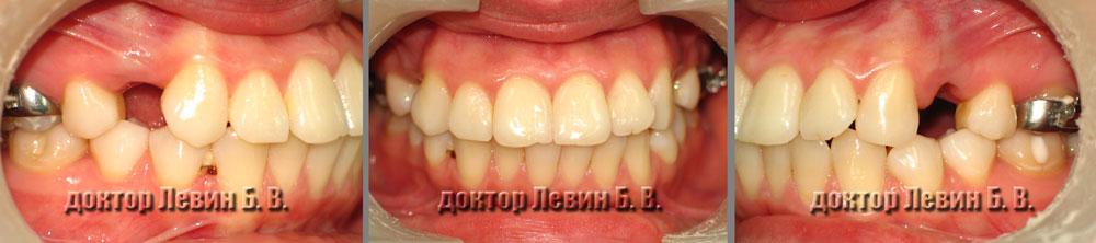 Три фото прикуса пациента в ходе лечения.  В начале лечения.  Вид фронта, справа и  слева.