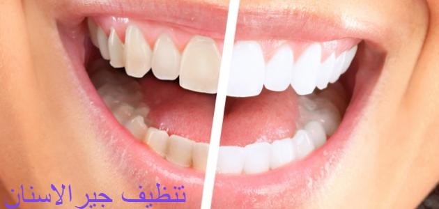 تنظيف جير الاسنان