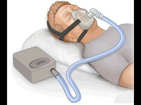 how to treat obesity hypoventilation syndrome