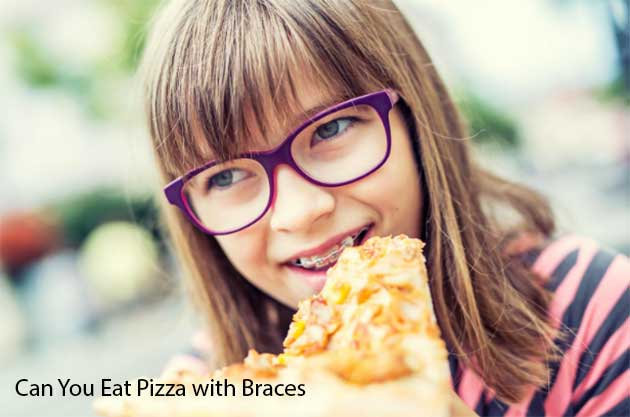 Can You Eat Pizza with Braces
