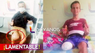 Joven de Pitalito denuncia que perdió una pierna por culpa de su EPS
