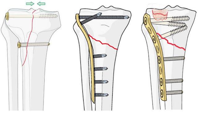 Лечение перелома ладьевидной кости в Харькове. Перелом ладьевидной кости кисти операция, отзывы, форум