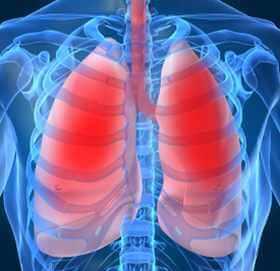 akciğerlerde lejyoner hastalığı