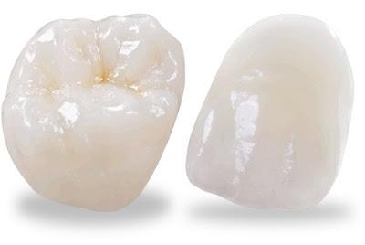 răng sứ có thời gian bảo hành bao lâu -4