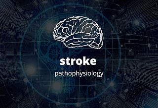 pathophysiology of a stroke