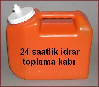 24 saatlik idrar toplama kabı
