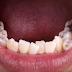 Răng bị móm phải làm gì?