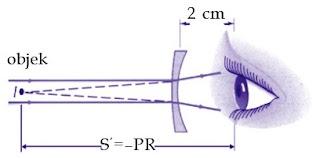 Bayangan benda jauh yang dibentuk lensa untuk miopi harus jatuh di titik jauh mata