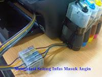 Begini Cara Mudah Menghilangkan Udara Pada Selang Infus Printer