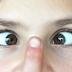 Tips Atasi Kelelehan Mata Akibat Laptop