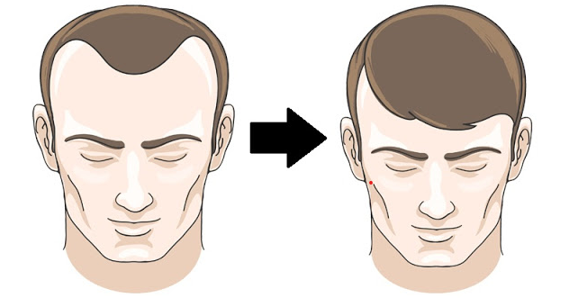 Reverse Balding Home Remedies Step-By-Step
